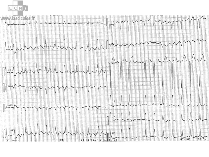 cardiologie-ECG-flutter-a-conduction-variable