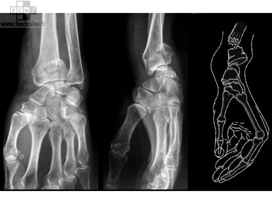 fracture-pouteau-colles-extremite-radiographie-inferieure-radius