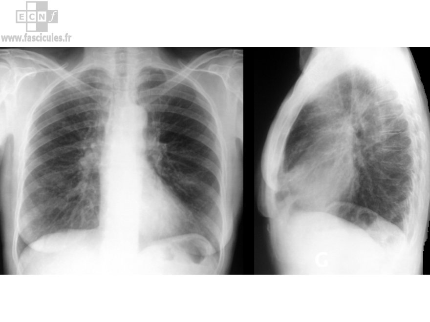 radiographie-poumons-pulmonaire-thorax-normale